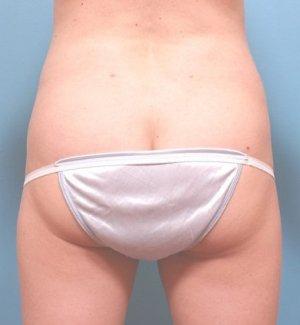 Manhattan liposuction after 2